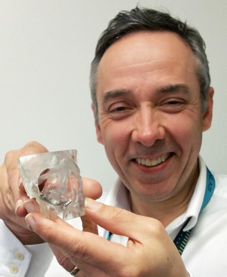 Peter Llewelyn Evans tinand in mana in implant 3D pentru orbita unui ochi. Foto: Abertawe Bro Morgannwg University Health Board.