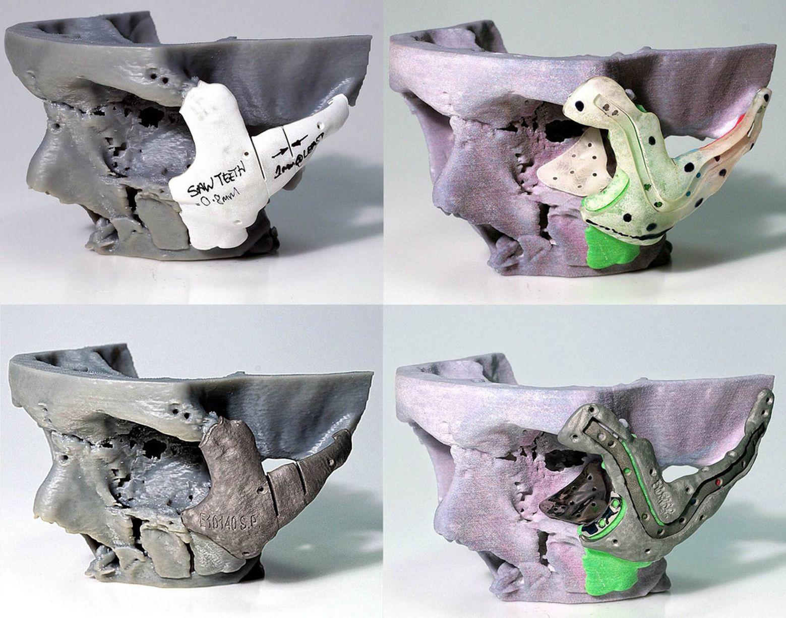 Implanturi din titan folosite pentru reconstructie faciala